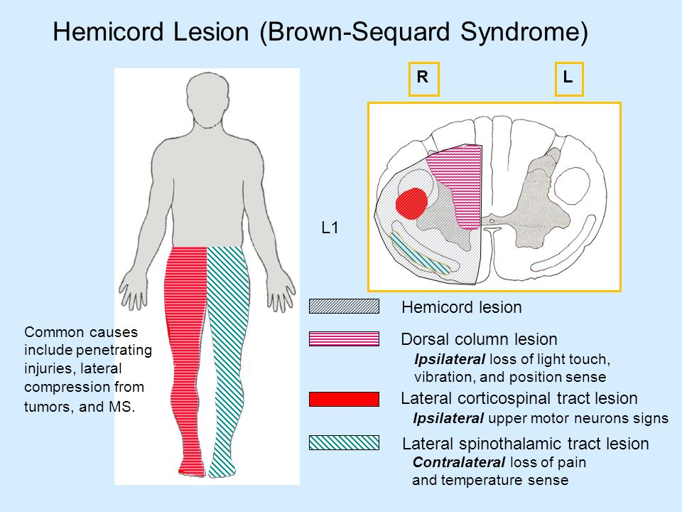 Paraplegia and spinal cord syndromes ppt video online for Upper motor neuron syndrome symptoms