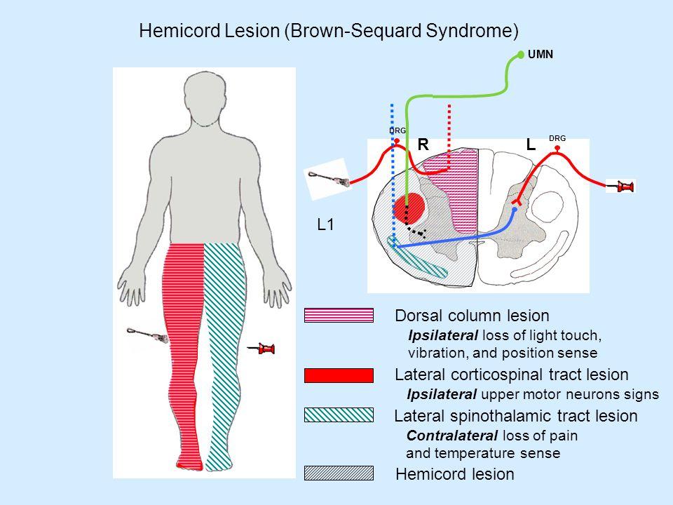 Upper motor neuron umn bowel syndrome for Upper motor neuron syndrome symptoms
