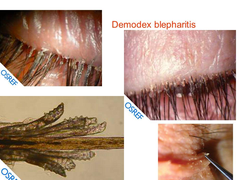 demodex traitement homéopathique
