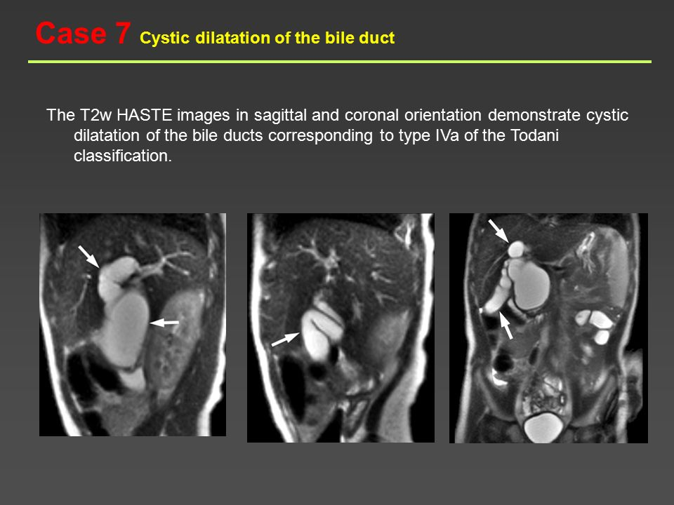 Liver Masses In Pediatric Patients Ppt Download