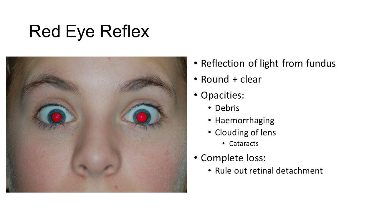 Degenerative Eye Disease >> Aaqid Akram MBChB (2013) Clinical Education Fellow - ppt video online download
