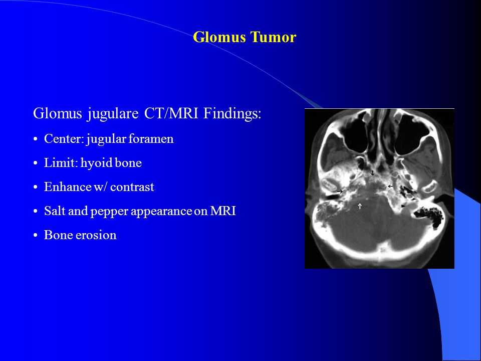 Glomus jugulare CT/MRI Findings: