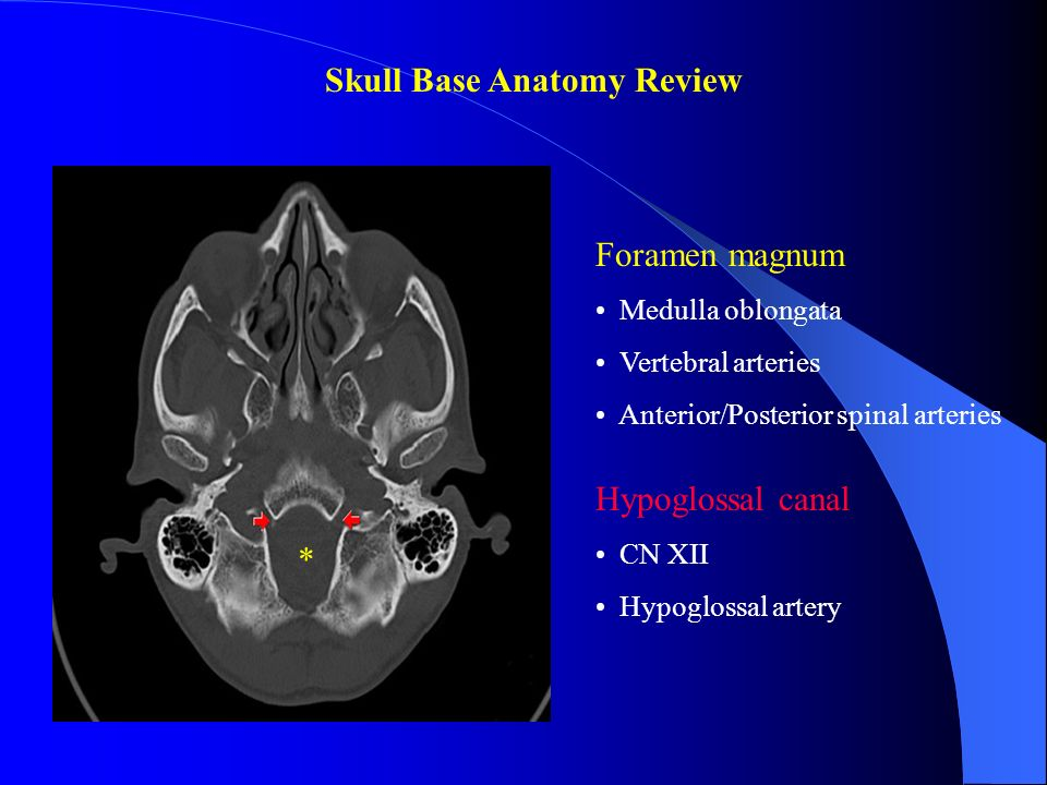 Skull base anatomy radiology