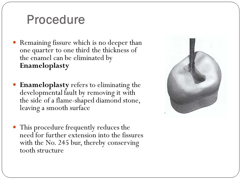 Procedure Remaining fissure which is no deeper than one quarter to one third the thickness of the enamel can be eliminated by Enameloplasty.