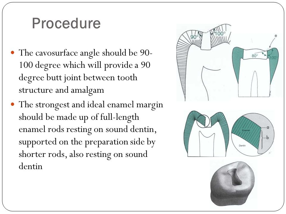 Procedure The cavosurface angle should be 90- 100 degree which will provide a 90 degree butt joint between tooth structure and amalgam.