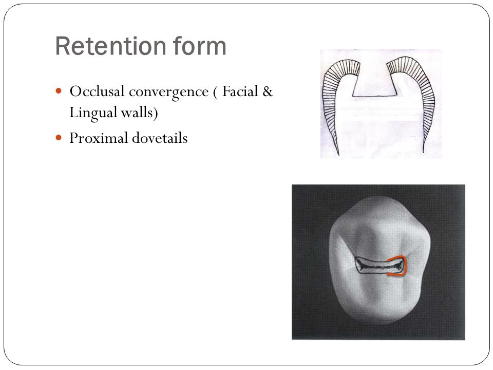 Retention form Occlusal convergence ( Facial & Lingual walls)
