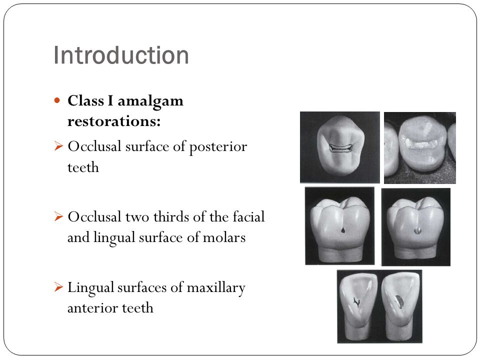 Introduction Class I amalgam restorations: