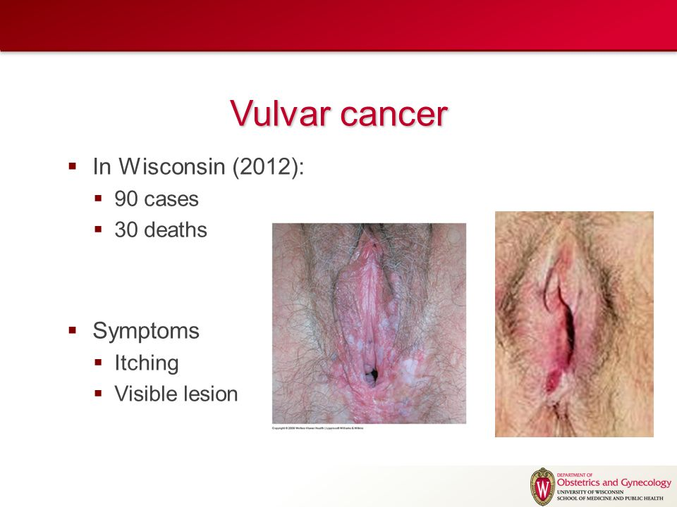 Cancer of the vulva symptoms