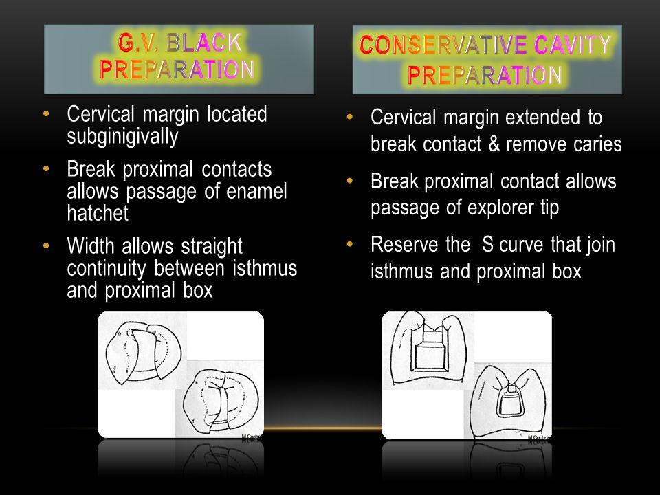 Conservative cavity preparation