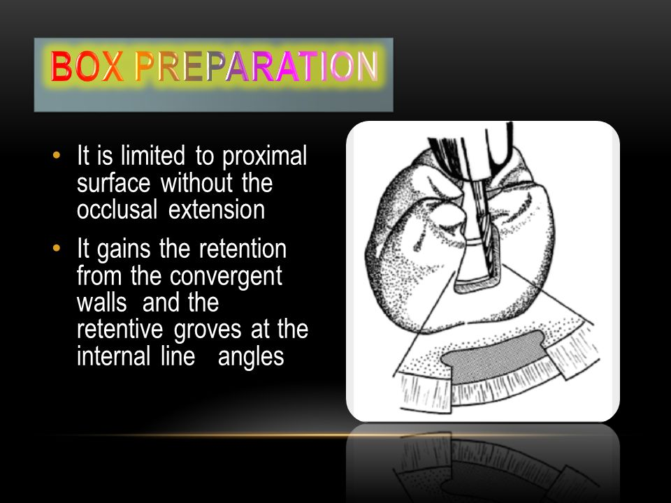 Box preparation It is limited to proximal surface without the occlusal extension.