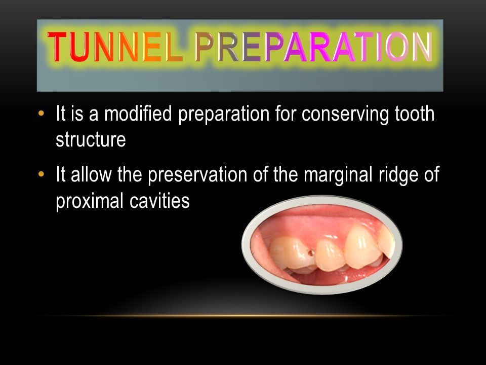 Tunnel preparation It is a modified preparation for conserving tooth structure.
