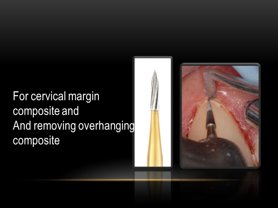 For cervical margin composite and And removing overhanging composite