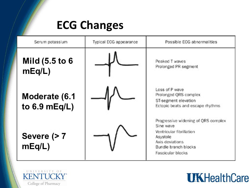 how to remember electrolyte ecg changes