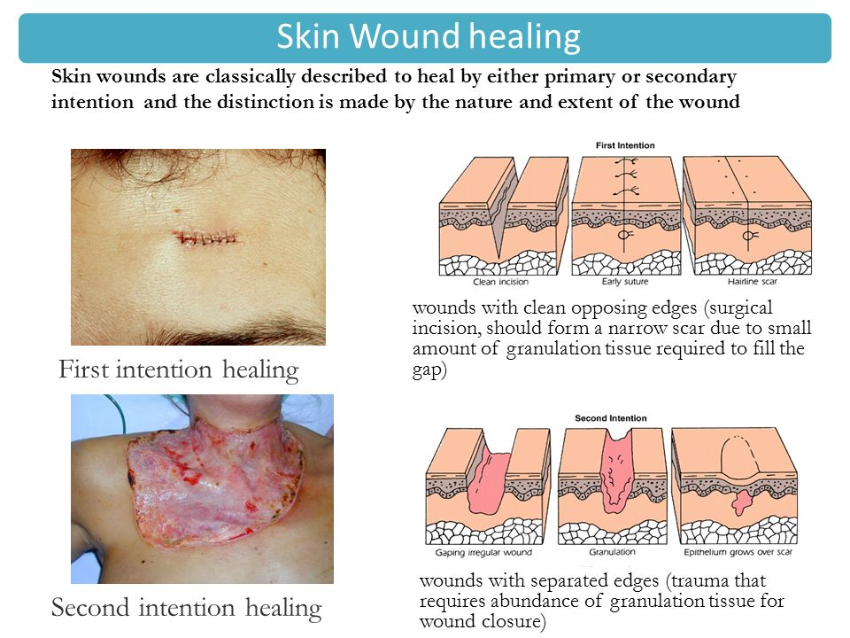 wound healing Our wound healing program treats non-healing wounds with a comprehensive team approach.