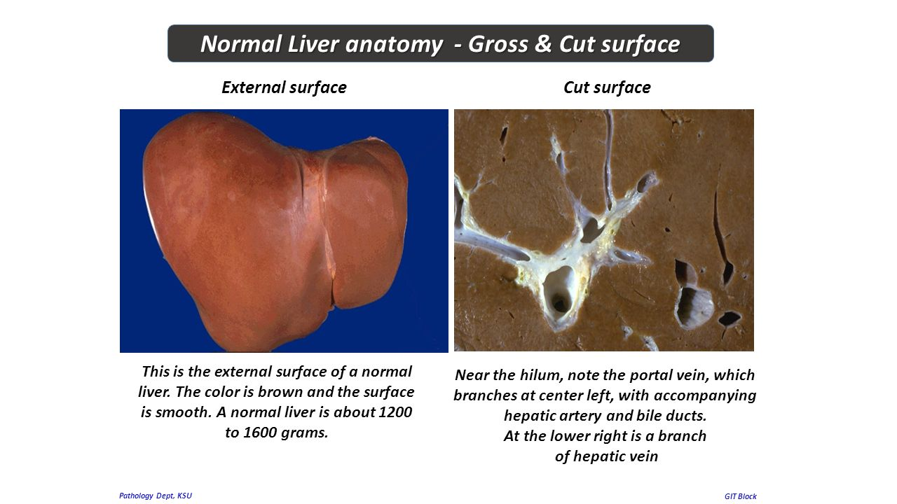 gross anatomy of liver pdf
