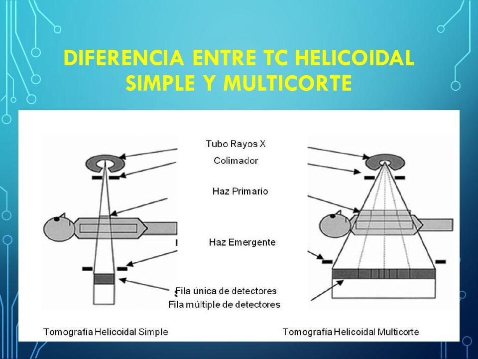 Equipo de tomograf a y m todos de reconstrucci n ppt for Diferencia entre yeso y escayola