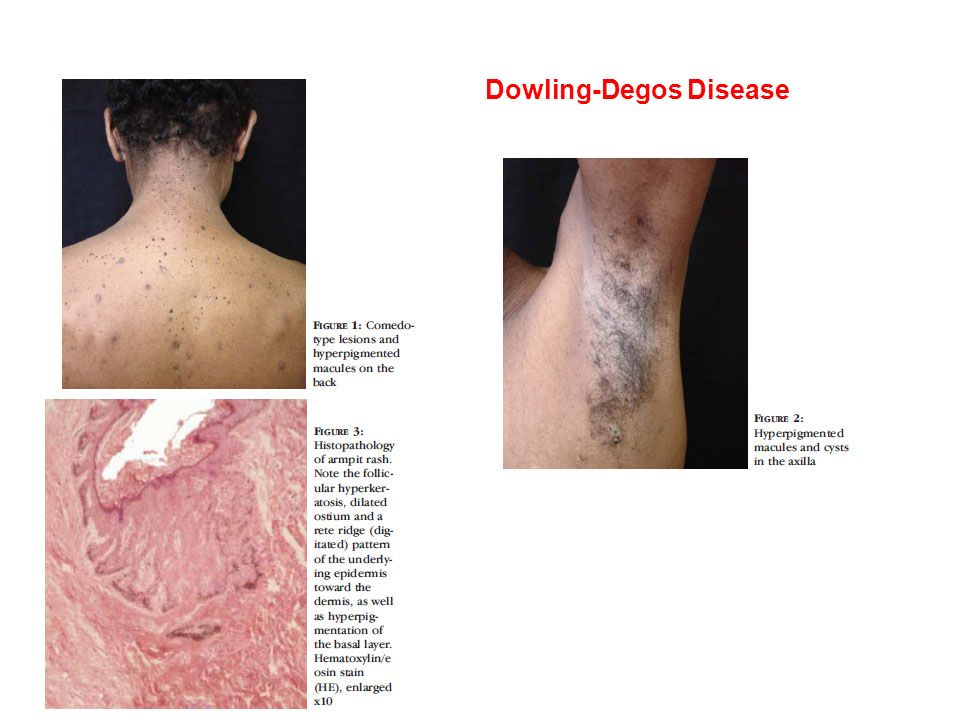 Dowling-Degos Disease - ppt video online download