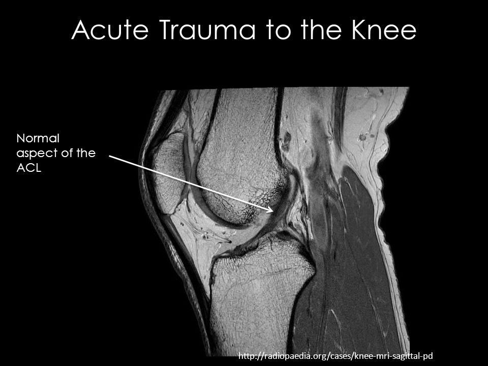 What causes pain behind the knee?