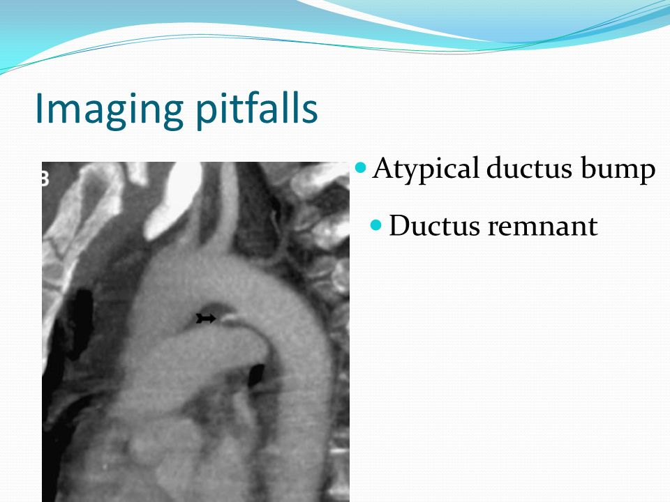 Whole body mdct in trauma detection of vascular injuries for Aortic mural thrombus management