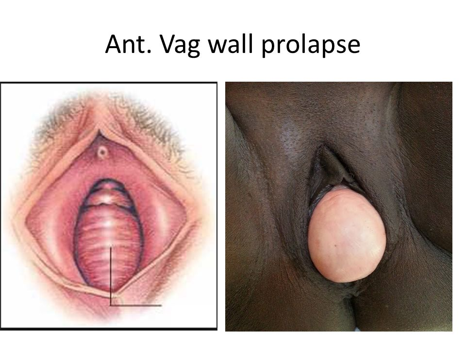 Ant. Vag wall prolapse