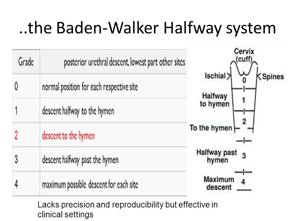 ..the Baden-Walker Halfway system