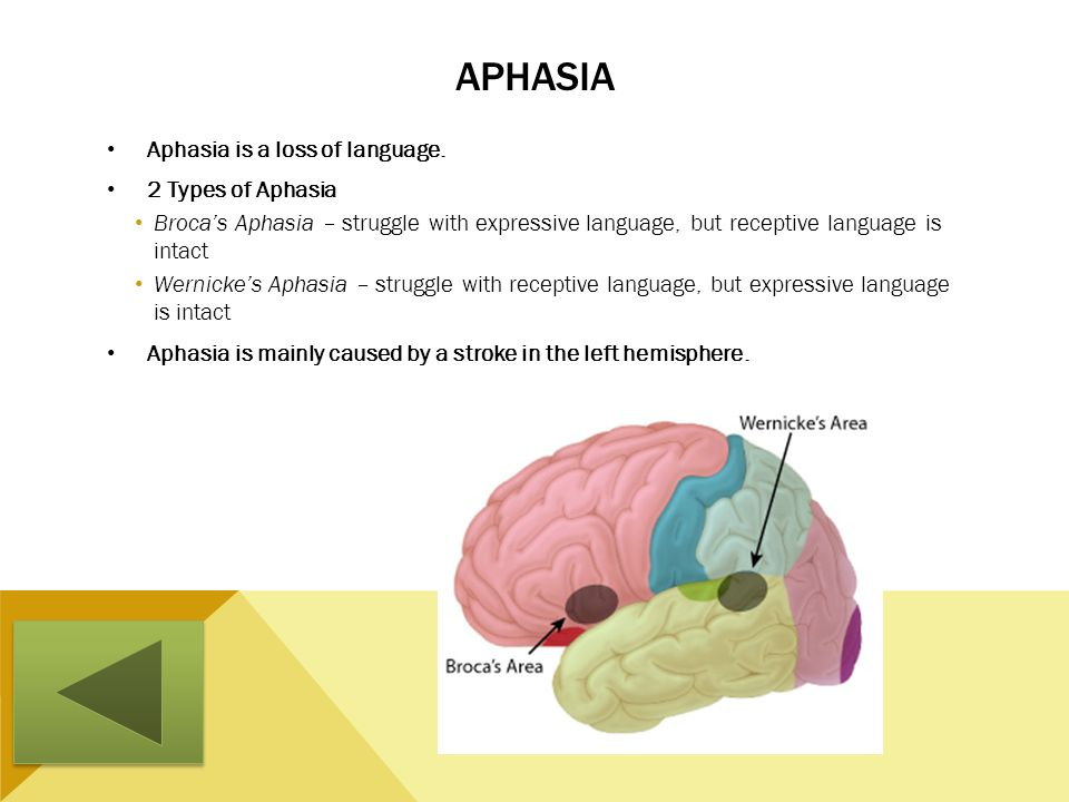 Aphasia Aphasia is a loss of language. 2 Types of Aphasia