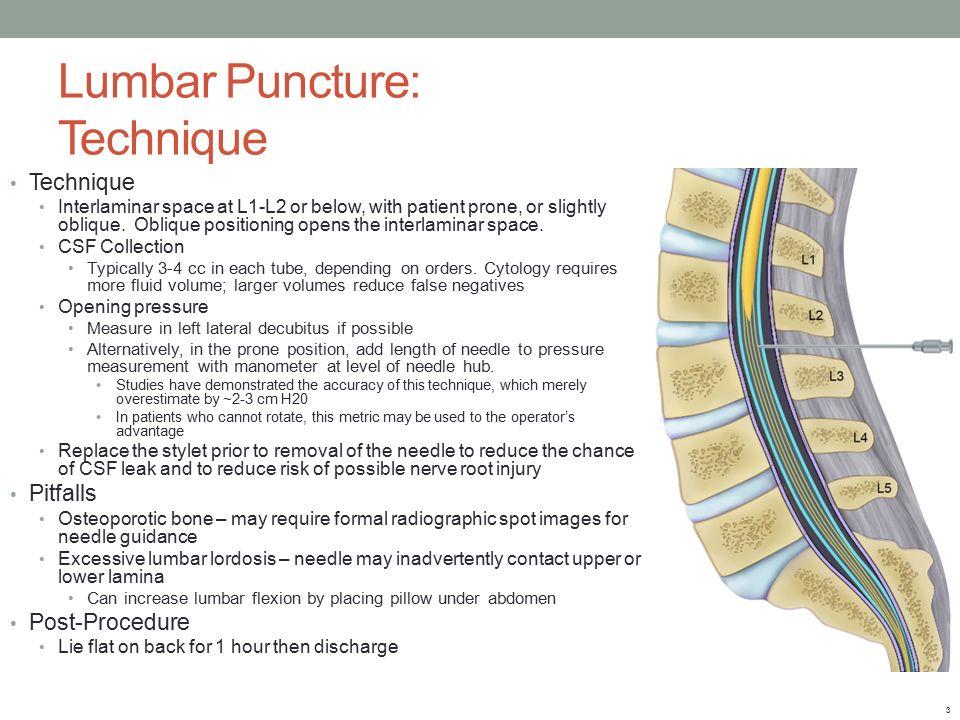 Famous Lumbar Puncture Procedure Anatomy Elaboration - Human Anatomy ...