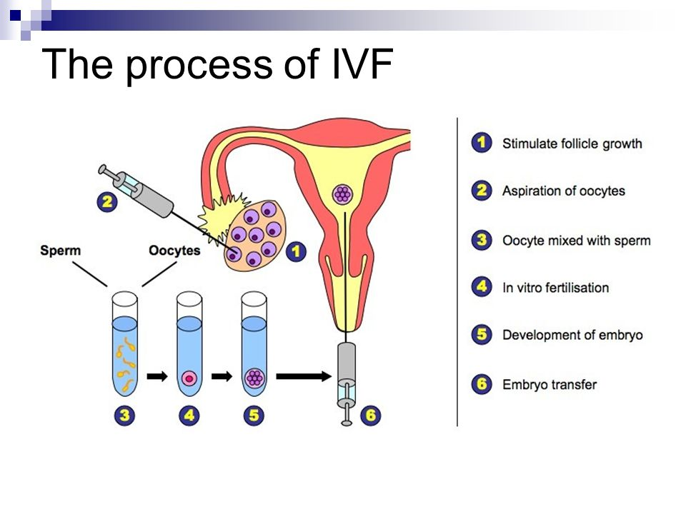 a study of ivf or in vitro fertilisation The hypothesis of this randomized double blind study is that the live birth rates are significantly higher after the use of atosiban prior to the embryo transfer in patients undergoing in vitro fertilization (ivf) treatment.