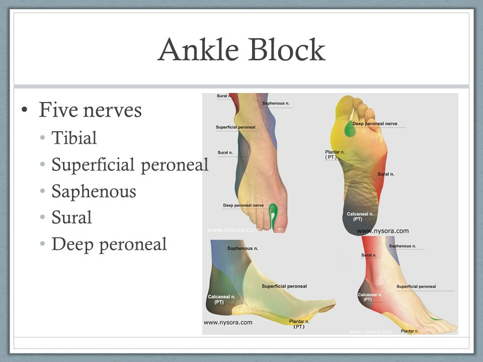 Ankle Block Five nerves Tibial Superficial peroneal Saphenous Sural