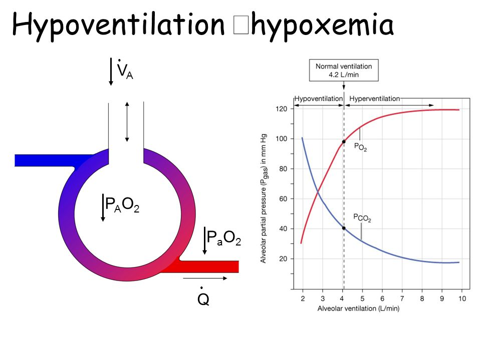hypoxemia causes minute ventilation to Clinical studies inappropriate ventilation and hypoxemia as causes of cardiac arrhythmias 7he control of arrhythmias without antiarrhythmic drugs stephen m ayres, md and william j.