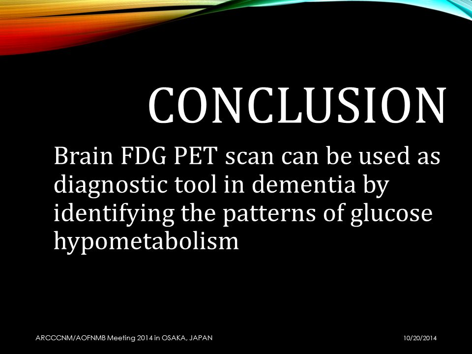 how to read ct brain ppt