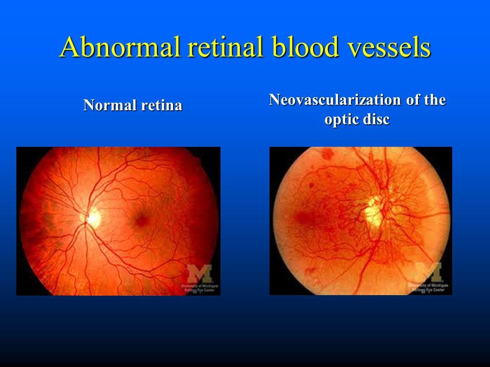 non steroid medication for rheumatoid arthritis