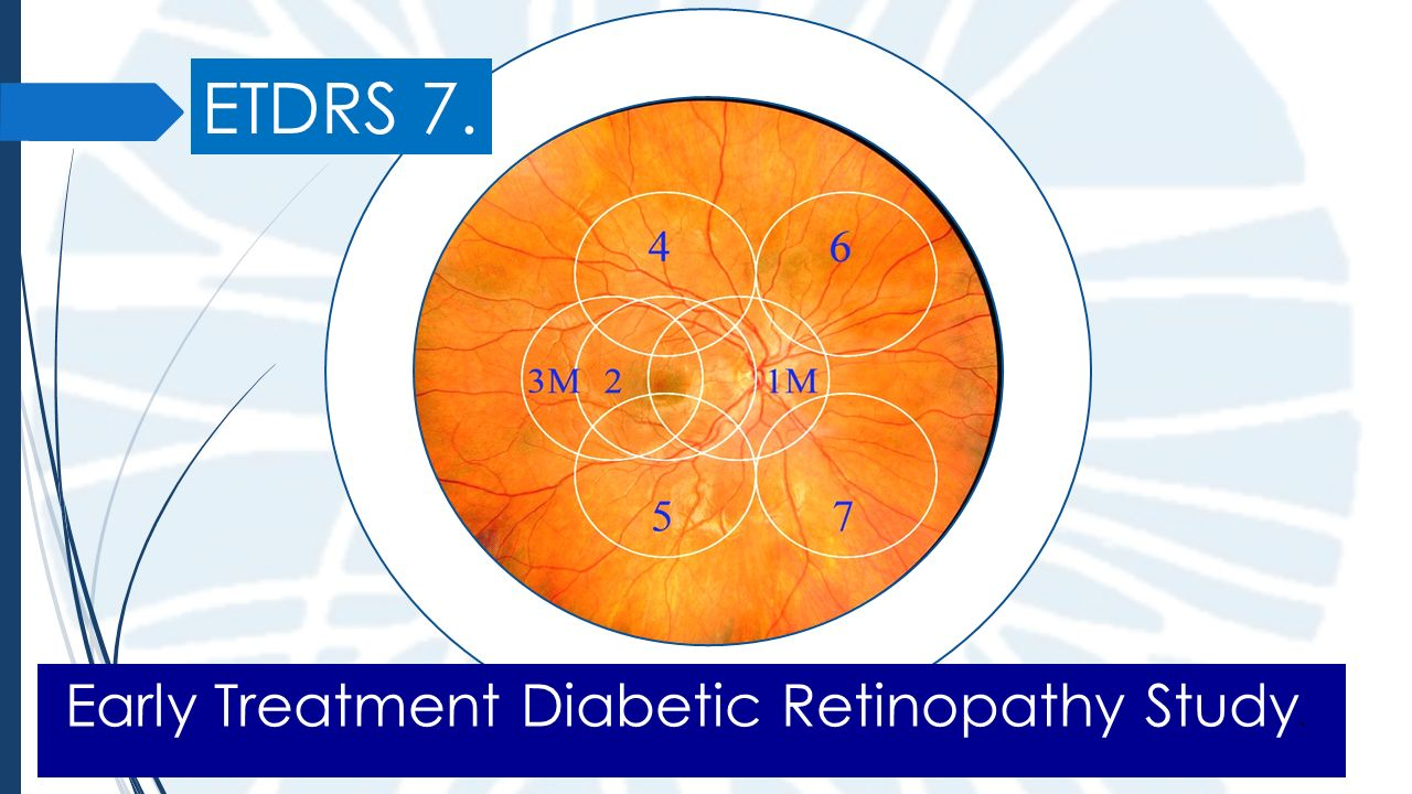 Early Treatment Diabetic Retinopathy Study Classification ...