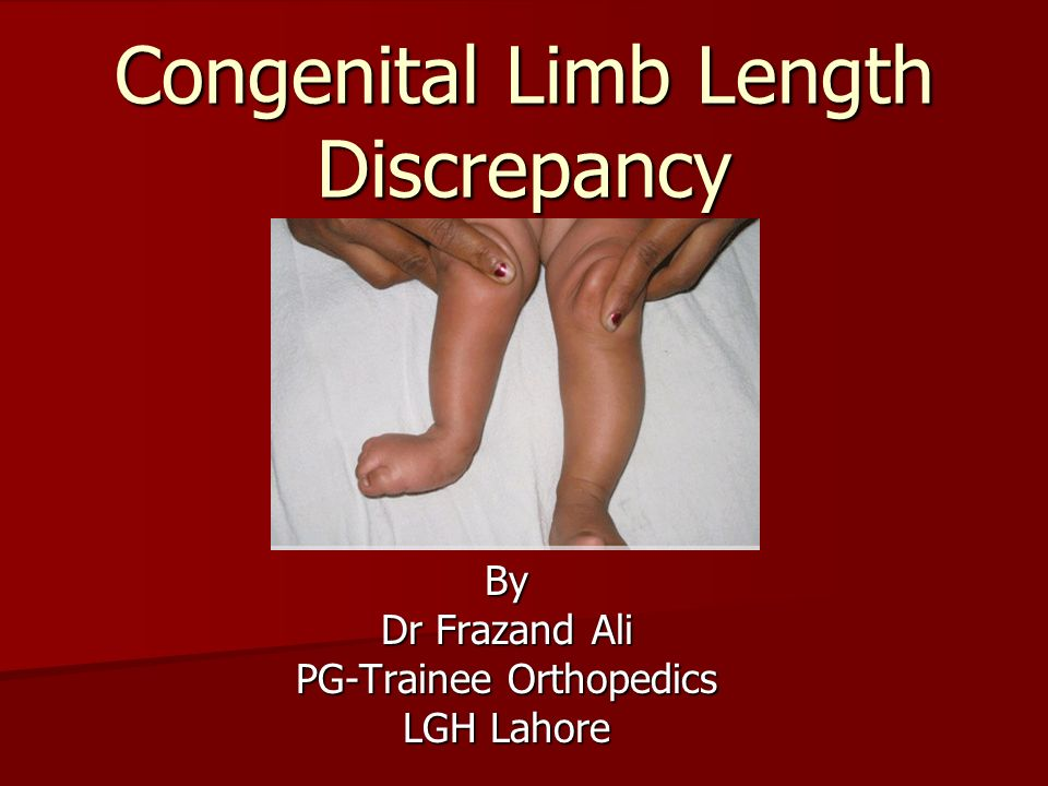 True and apparent leg length measurement | bone and spine.
