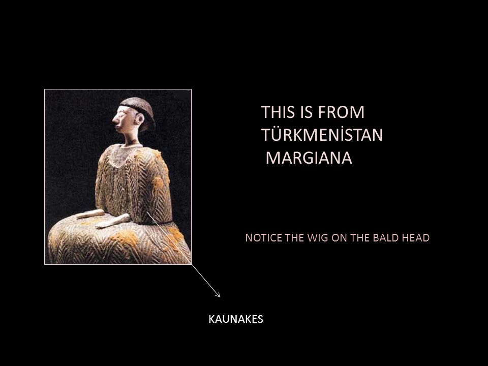 THIS IS FROM TÜRKMENİSTAN MARGIANA NOTICE THE WIG ON THE BALD HEAD