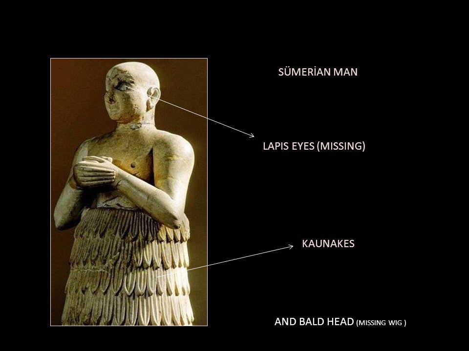 SÜMERİAN MAN LAPIS EYES (MISSING) KAUNAKES AND BALD HEAD (MISSING WIG )