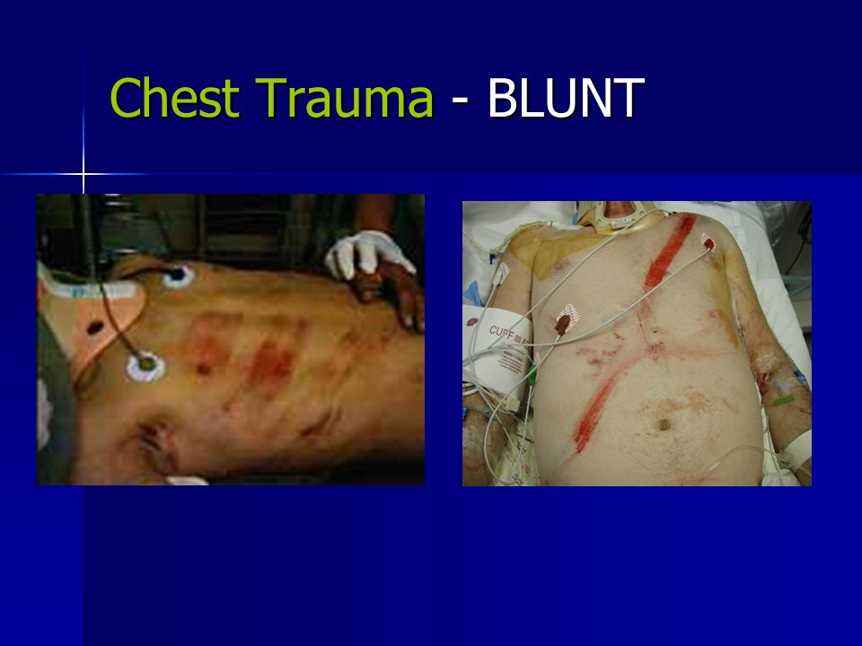 blunt chest trauma Care guide for blunt chest trauma includes: possible causes, signs and symptoms, standard treatment options and means of care and support.