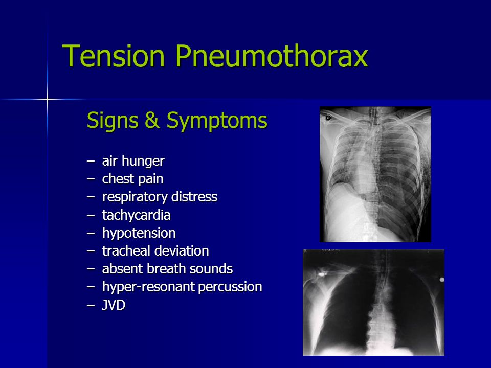 Chest Trauma. - ppt video online download