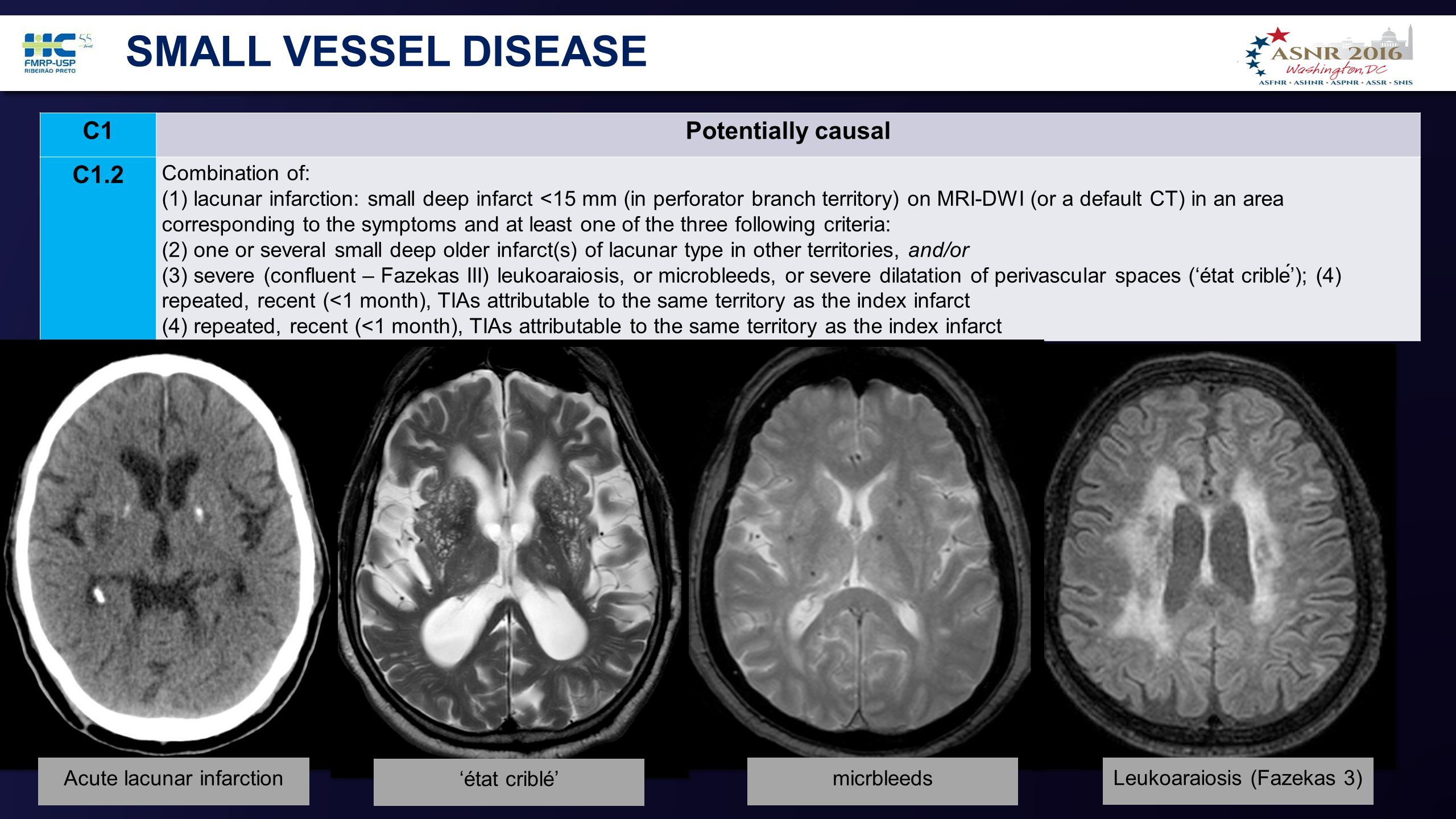 Small vessel disease hard to
