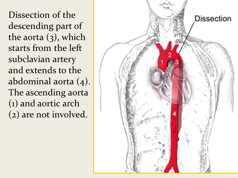 Dissection of the descending part of the aorta (3), which starts from the left subclavian artery and extends to the abdominal aorta (4).