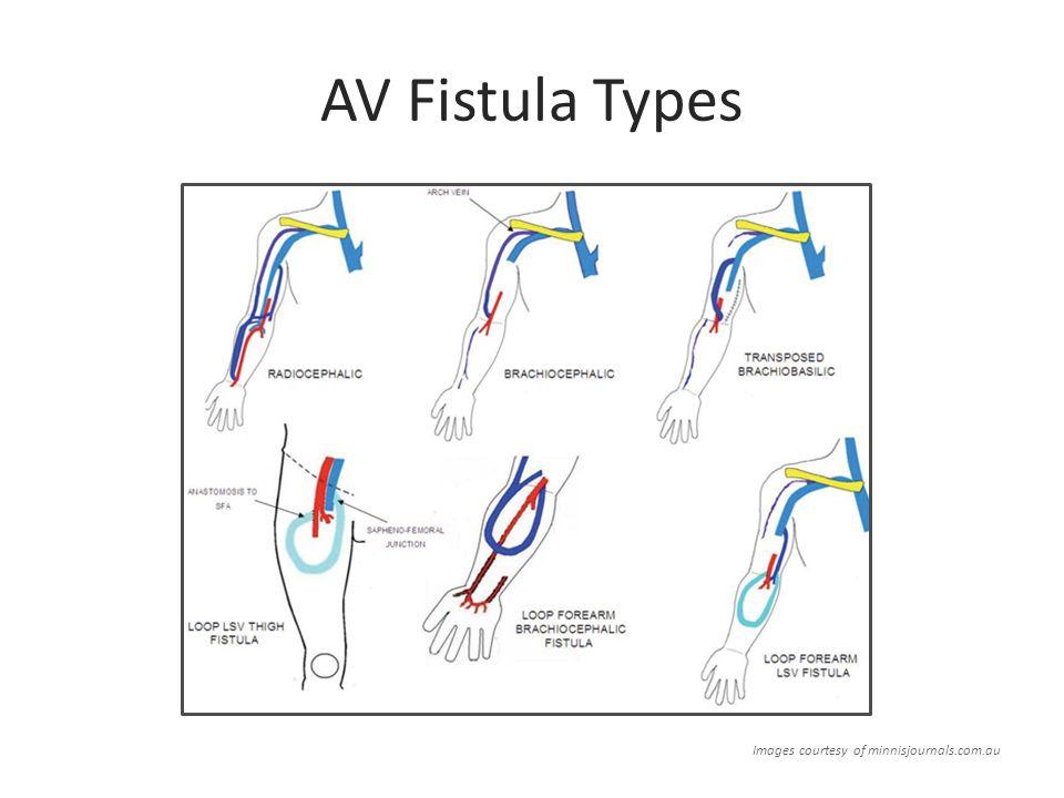 Av Fistula Radiocephalic Types Of Av Fistulas P...