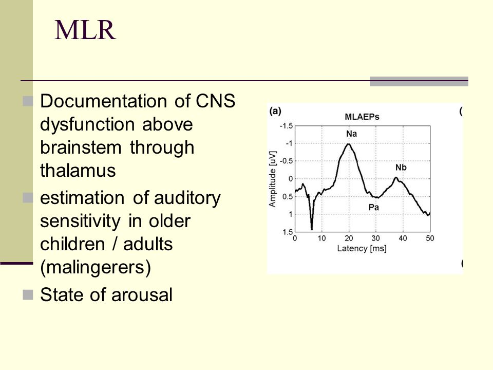 cns involvement in gbs brainstem auditory evoked potential Investigation of auditory brainstem function  university of szeged,szeged,llungary abstract: we performed brainstem auditory evoked potential (baep) examinations in 15 patients with.
