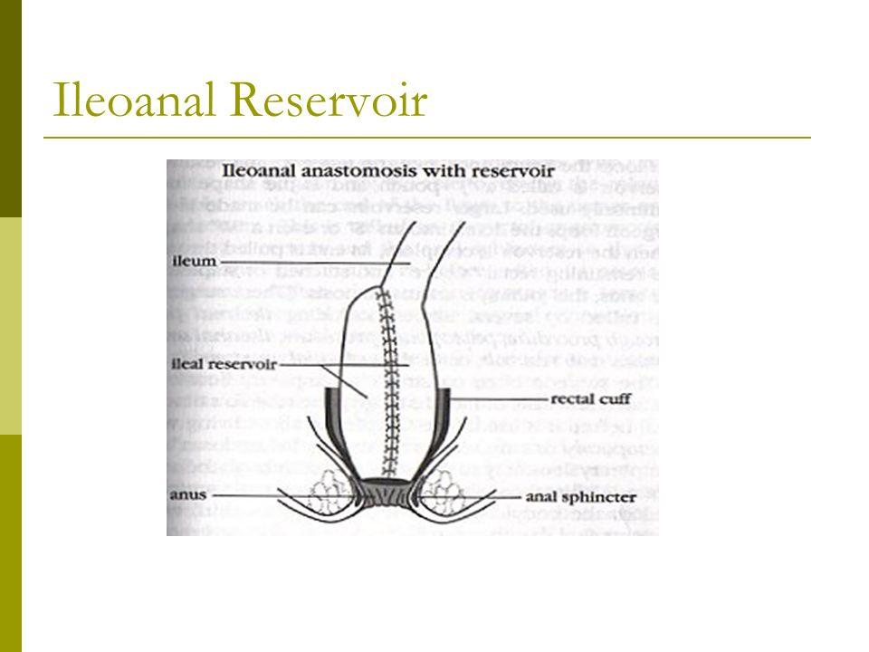 Bowel Diversion Stoma-...J Pouch