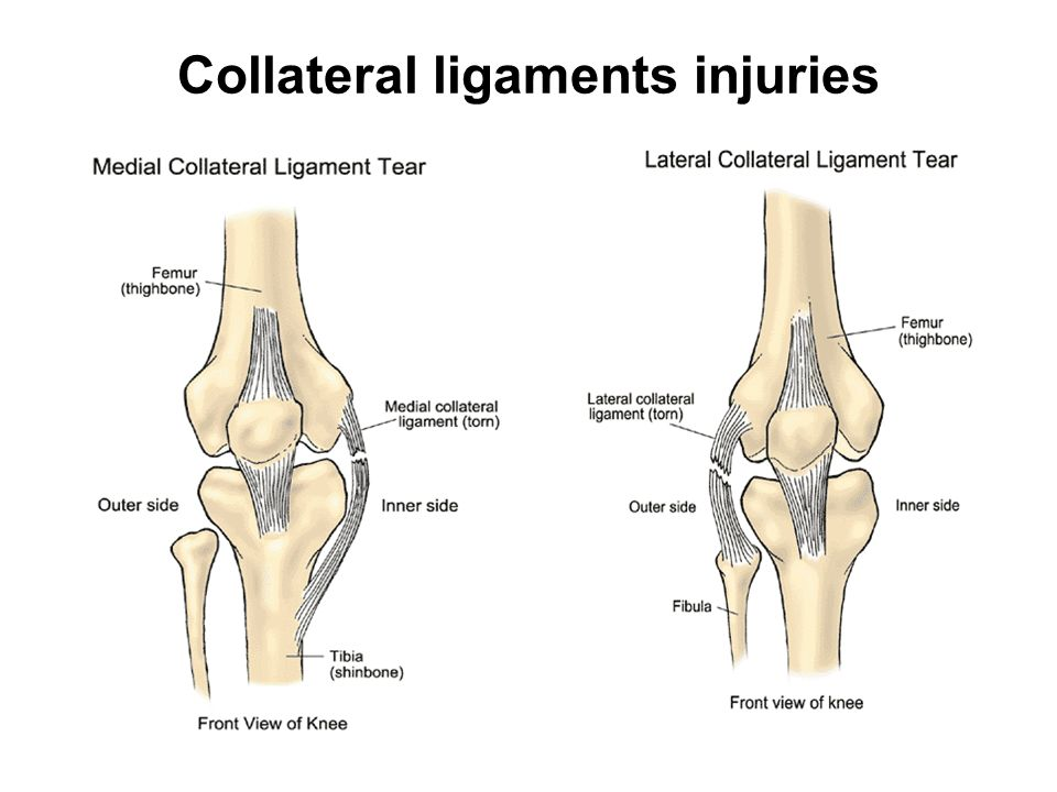 Modern Torn Lateral Collateral Ligament Knee Gift Anatomy And