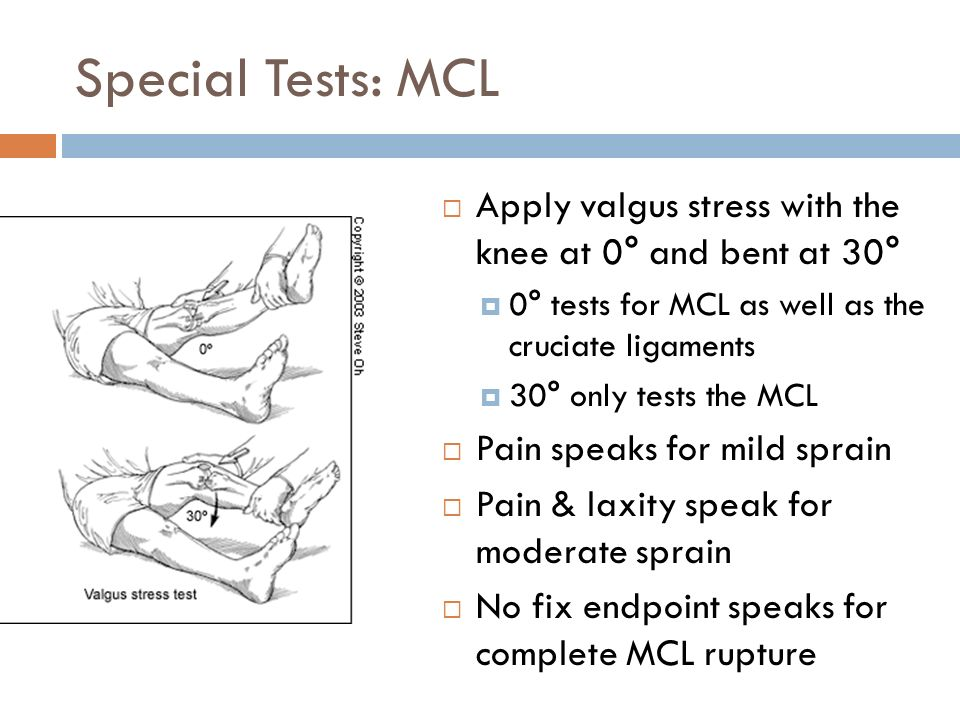 The Examination of the Knee ECHO Sports Medicine 4/7/ ppt download