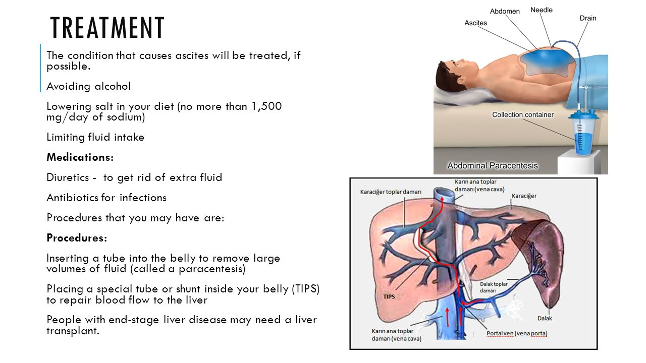 how to tell if you have ascites