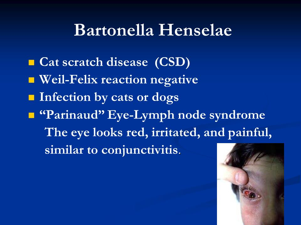 Rickettsia chlamydia and mycoplasmas ppt video online for What does cat scratch fever look like