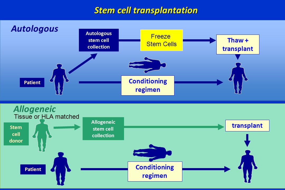 What Is Autologous Stem Cell Transplantation