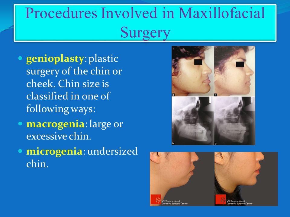 Oral Procedures 60