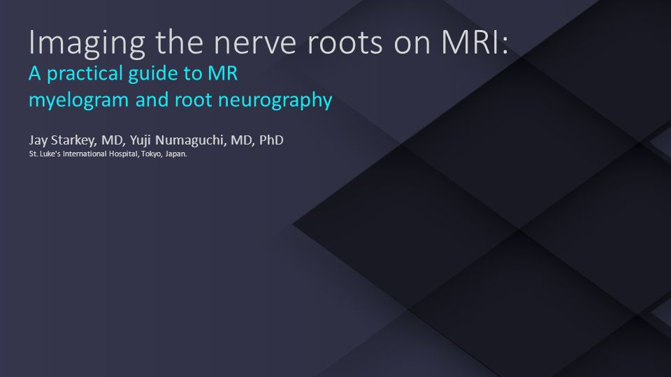 Imaging The Nerve Roots On Mri Ppt Video Online Download